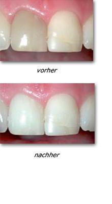 Zahnarzt, Implantologie Hamburg-Barmbek