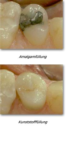 Amalgamfüllung, Kunststofffüllung Dr. Bahr - Zahnarzt, Hamburg