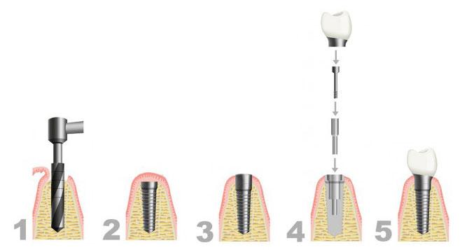 Implantate Zahnarztpraxis Dr. Bahr Hamburg