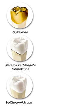 Zahnkronen - Kronen - Zahnarzt Hamburg-Barmbek