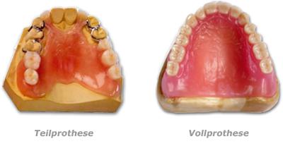 Teilprothesen und Vollprothesen